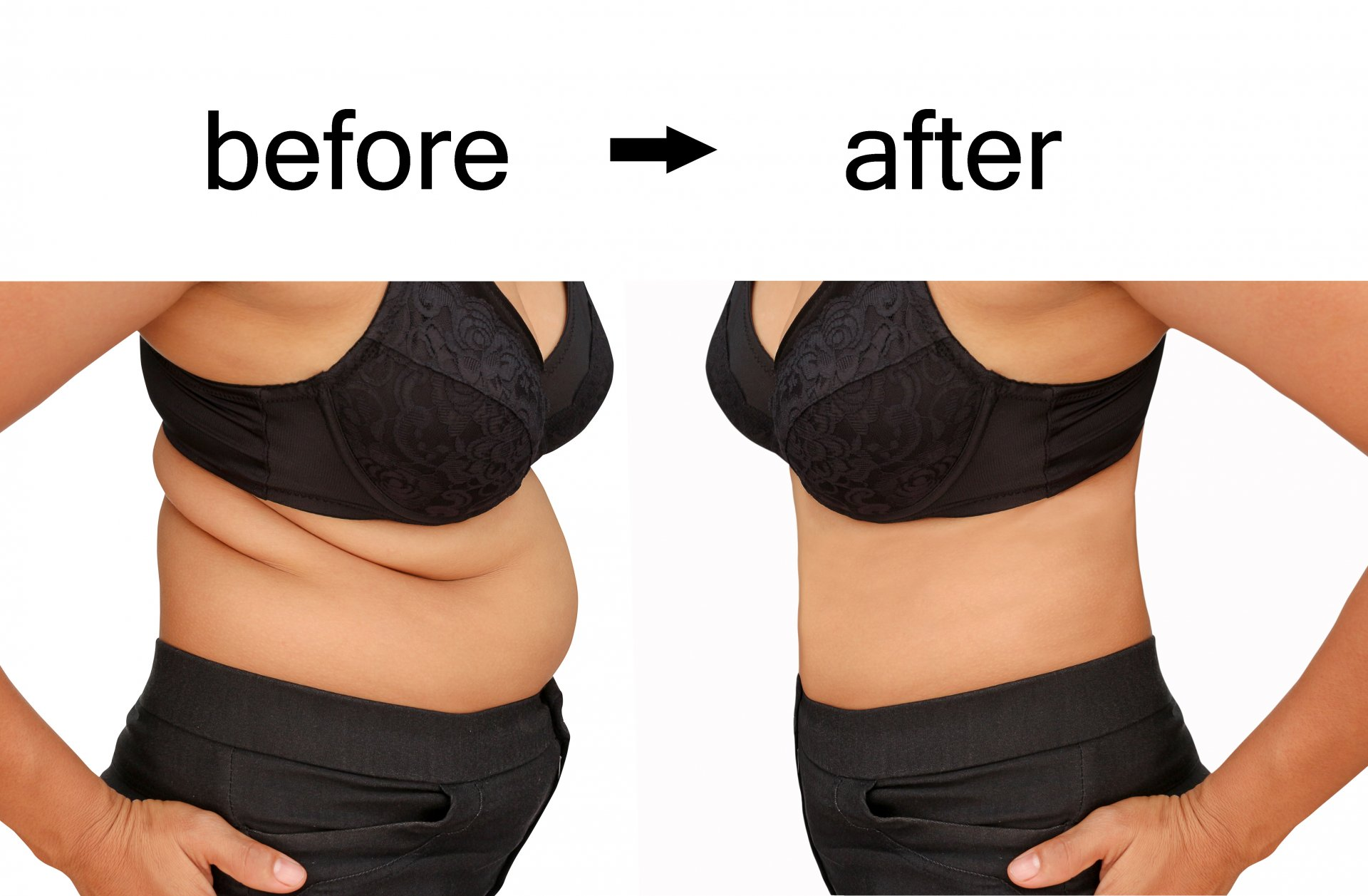 Fayetteville ar medical weight loss