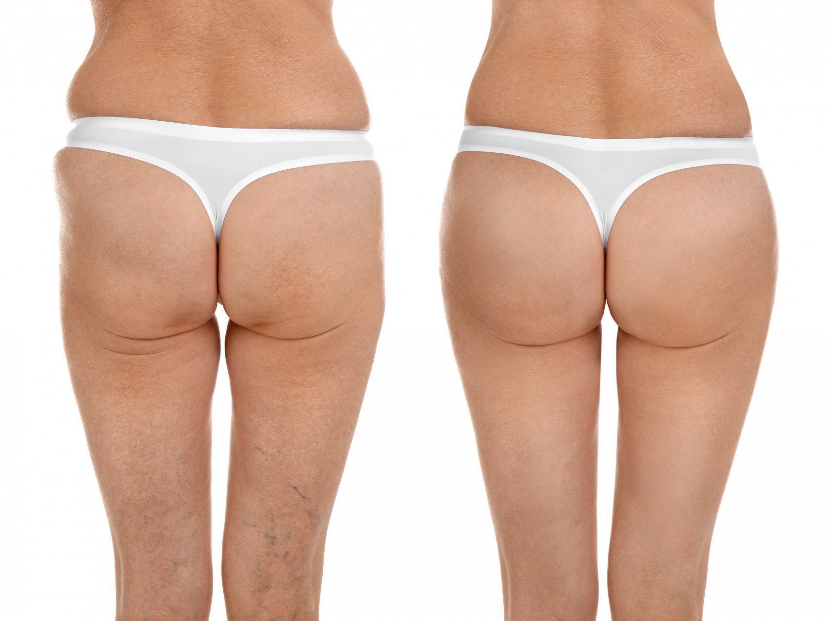 FAQ liposuction for lipedema patients | Treatment in Lithuania